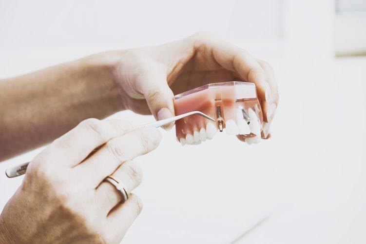 Reduccion-ventas-implantes-grupo-kalma